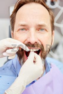 Zahnreinigung als Prophylaxe gegen Parodontose