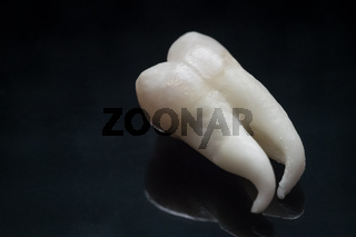 A wisdom tooth