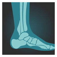 X-ray shot of foot side view, human body, bones, radiography, vector illustration.