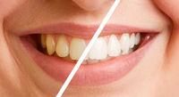 Vergleich von Zähnen vor und nach Zahnreinigung