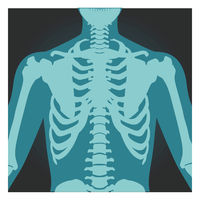 X-ray shot of shoulder, human body bones, radiography, rib cage, chest and arm, vector illustration.