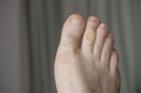 A man feet with corn remover pad on the second finger