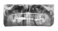film with X-ray image of jaws with dental crown