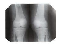 film with X-ray image of front view of human knees