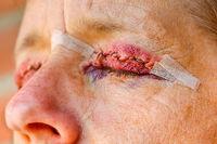 Close up eyelid correction closed eye