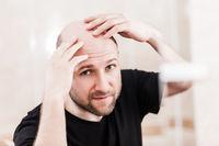 Bald man looking mirror at head baldness and hair loss