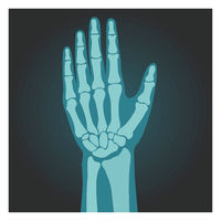 X-ray shot of wrist, human body, bones of hand, radiography, vector illustration.