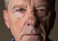 Senior caucasian man with a black eye