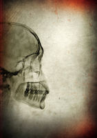 X-ray skull on a dark textured background