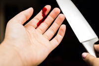 Finger cut, bleeding injured with knife, Flesh blood wound in hand