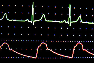 EKG Monitor ECG screen