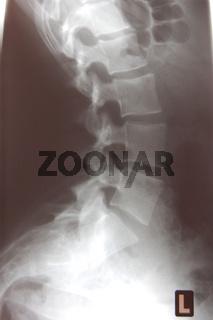 Hohlkreuz, x-ray
