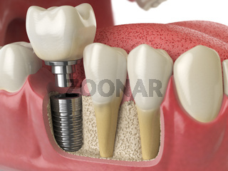 Anatomy of healthy teeth and tooth dental implant in human denturra.