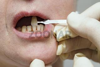 Farbabstimmung der Zähne