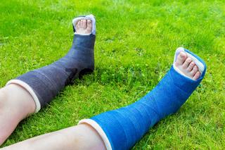 Two gypsum legs of boy on grass