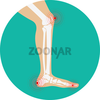 Human leg pain zones. Design elements for infographic.