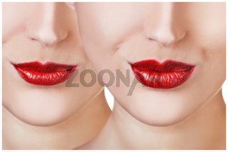 Red lips before and after filler injections