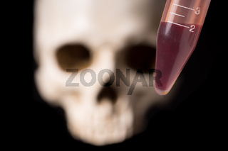 blood sample and skull