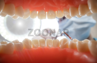 Patient at a dentist appointment in a dental clinic. View from inside the dental jaw.