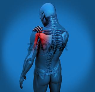 Digital figure with shoulder pain