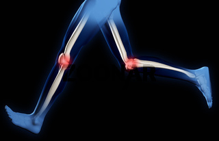 Pain in knee joints