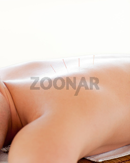 Close-up of a caucasian man receiving an acupuncture therapy in a spa center