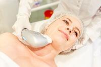 Hautstraffung im Gesicht einer Frau durch Ultraschall