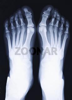 feet xray
