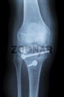 Frakturiertes Knie, Röntgenbild nach Reposition