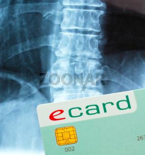 E-Card zur Abrechnung der Arztrechnungen