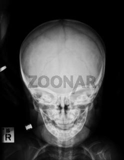 Kinderschädel, Röntgenaufnahme nach Unfall