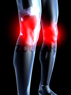 Knee Ache - Anatomy
