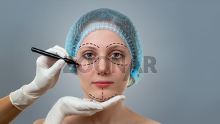 Plastic surgeon drawing lines on a face of young woman prior to cosmetic surgery