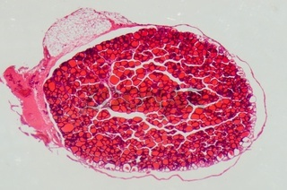 science medical anthropotomy physiology microscopic section of human thyroid gland background