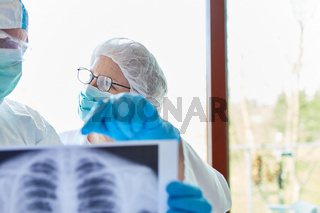 Ärzte analysieren Lungenentzündung von Covid-19 Patient