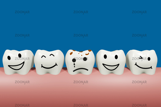 Sick tooth in the series of healthy, 3D illustration