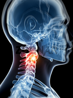 3d rendered illustration - painful neck