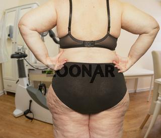 Frau mit Übergewicht in einem Behandlungszimmer bei einem Arzt