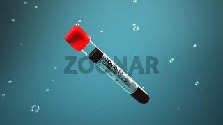 Corona Virus Test Tube Negative