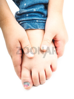 Blue nail on a childs big toe after injury