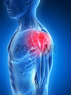 3d rendered illustration - painful shoulder muscles