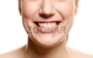 Frau zeigt ihre Zähne