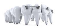brackets on the teeth