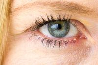 Stye, Hordeolum, bacterial infection of womans eye, medical, pharmaceutical, eye concepts