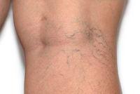 Varicose spider veins on womans legs