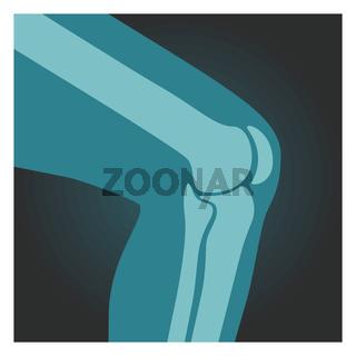 X-ray shot of knee, human body, bones of leg, radiography, vector illustration.