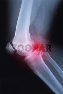 Medical x-ray knee joint image with arthritis ( Gout , Rheumatoid arthritis , Septic arthritis , Osteoarthritis knee )