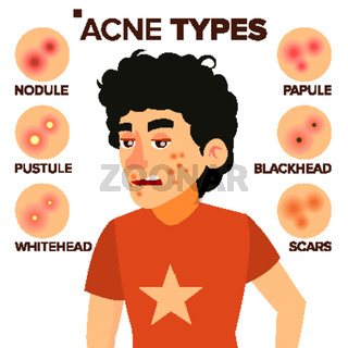 Acne Types Vector. Boy With Acne. Pimples, Wrinkles, Dry Skin, Blackheads. Isolated Flat Cartoon Character Illustration