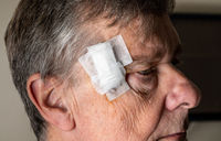 Side view of senior man after MOHS surgery to remove skin cancer with dressings