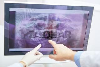 Hände von Zahnärzten zeigen auf Röntgenbild